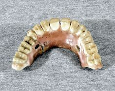 Porcelain denture. XVIII sec.