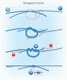 Carp fishing knots domhof knot fishing tips for Surgeon s knot fishing