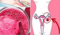 Ovarian Cysts Symptoms -Remedies - MIOMA Y QUISTE 1 Weird Trick Treats Root Cause Of Ovarian Cysts In Days - Guaranteed! - 1 Weird Trick Treats Root Cause of Ovarian Cysts In Dys - Guaranteed! Hypothyroidism Diet Plan, Ovarian Cyst Treatment, Ovarian Cyst Symptoms, Fibroid Uterus, Uterine Fibroids, Natural Cures, Natural Treatments, Women Health, Home Remedies