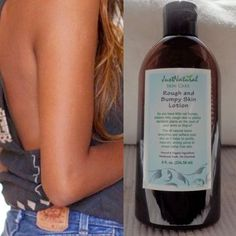 Have KP? Keratosis Pilaris occurs when hair follicles are blocked with built up keratin causing irritation, redness, and bumpiness. I'm so excited I found the BEST lotion that has cleared up all of my KP. Try it out!  $27.99 (affiliate link)