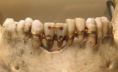Ancient Egyptians replaced teeth by using gold wire to attach the crown from a…