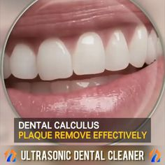 Ultrasonic Dental Teeth Cleaner Calculus is hardened plaque and is the cause of nearly all gum disease as well as tooth decay and bad breathe. Our dental cleaning tool uses high frequency vibrations to remove calculus and keep your teeth and gums healthy. Gum Health, Teeth Health, Healthy Teeth, Teeth Whitening Procedure, Natural Teeth Whitening, Whitening Kit, Teeth Care, Skin Care, Dental Videos