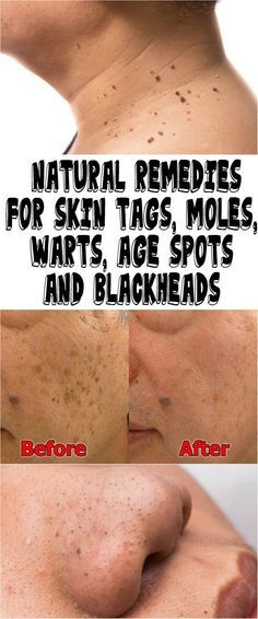 NATURAL REMEDIES FOR SKIN TAGS, MOLES, WARTS, AGE SPOTS AND BLACKHEADS