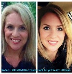 Rodan + Fields gives you the best skin of your life and the confidence that comes with it. Created by Stanford-trained Dermatologists, we understand skin. Our easy-to-use Regimens take the guesswork out of skincare so you can see transformative results. Redefine Regimen, Rodan And Fields Redefine, Skin Care Regimen, Face Lift Exercises, Macro Exfoliator, Facelift Without Surgery, Amp Md Roller, Natural Face Lift, Derma Roller