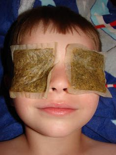 Childhood Beckons: Our Sunburn Remedies