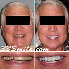 A total of 25 teeth restored! Our patient was thrilled with the result and so were we! We are accepting new patients so feel free to get in touch and set up a COMPLIMENTARY consultation! #drjamsmiles #33Smile . . All photos and video of patients are of our actual patients. All media is the of Cosmetic Dental Associates. Any use of media contained herein is prohibited without written consent. . . #satx #satxdentist #dentistry #goals #smile #teeth #instagoals #transformationtuesday #beforeandaft Insta Goals, Dental Cosmetics, Smile Teeth, Dental Procedures, Cosmetic Dentistry, Transformation Tuesday, Beautiful Smile, Restoration, Touch