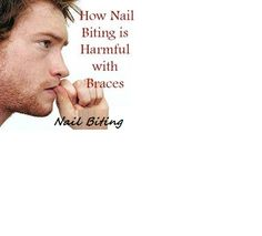 How #Nail Biting is harmful with #braces Colton Ford