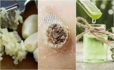 Natural Home Remedies 5 Home Remedies to Remove Warts Naturally - Do you know how to remove warts naturally? Warts are a problem that goes further than aesthetics. They certainly affect image, but their presence also. Home Remedies For Warts, Skin Tags Home Remedies, Warts Remedy, Natural Home Remedies, Natural Treatments, Face Scrub Homemade, Homemade Skin Care, Aspirin, Health Tips