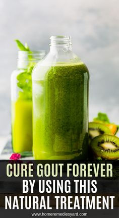 Cure Gout Forever By Using This Natural Treatment - The Healthy Media Natural Remedies For Gout, Gout Remedies, Natural Treatments, Herbal Remedies, Holistic Remedies, Health Diet, Health And Wellness, Chronic Kidney Disease