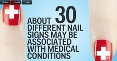 Nails are a good indicator of health - signs that may be associated with medical conditions