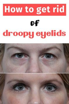 How to get rid of droopy eyelids - Glamour 'n' Health