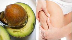 Πώς βοηθά το κουκούτσι του αβοκάντο στην αντιμετώπιση της κυτταρίτιδας;Η κυτταρίτιδα είναι ένα από τα αισθητικά προβλήματα που επηρεάζουν περισσότερο τις γυναίκες.