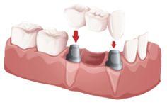 http://learn.allieddental.com.au/dental-implants/