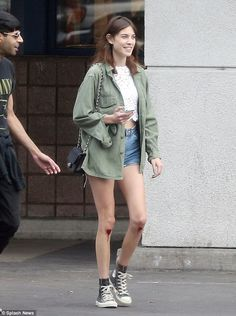 Bloody Nora! Alexa Chung ends her hike with cuts on her knees after taking a tumble