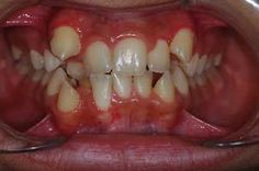 Is Jaw Expansion useful for the treatment of Class II malocclusion Dental Images, Crooked Teeth, Bottle Feeding, Healthy Teeth, Orthodontics, Dental Care, Breastfeeding, Nice, Al Dente