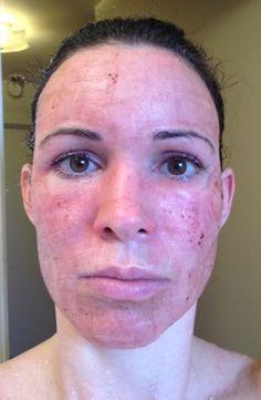 Blunt Tip Cannula Minimal Bruise Minimal Pain Dermal