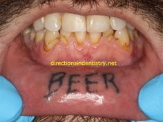 Of all the crazy things I've seen as a dentist, this tattoo ranks as one of most fascinating. Is this the Most Interesting Tattoo in the World? Dental Photos, Crazy Things, Dentistry, Cool Tattoos, World, Blog, God Tattoos, The World, Blogging