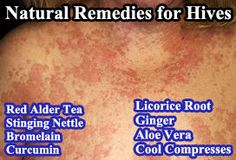 natural medicine hivesp