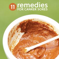 11-Remedies-For-Canker-Sores...http://homestead-and-survival.com/11-remedies-for-canker-sores/