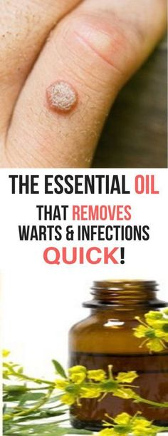Powerful Essential Oil That Help To Get Rid From Warts & Infections Quickly! There are more than 100 types of HPV, the virus that causes warts. Natural Health Tips, Natural Health Remedies, Herbal Remedies, Natural Healing, Natural Oil, Natural Foods, Natural Cures, Cold Remedies, Bloating Remedies