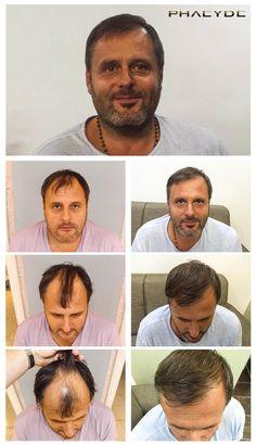 Michael med hans utmärkta donator zonen var inte en stor utmaning för hårtransplantation, eftersom han hade en stor och tät donator zonen. En hårtransplantation fall där skallighet zonen är lite mindre, än givaren. Klar vid PHAEYDE Clinic.  http://sv.phaeyde.com/har-implantation