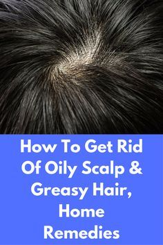 how to get rid of excess oil on scalp