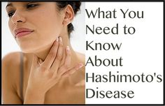What You Need to Know About Hashimoto's Disease