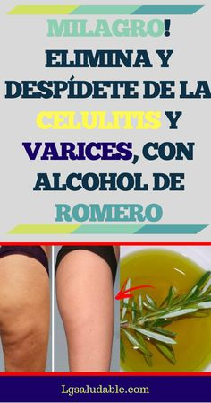Natural Health Remedies Home Remedies Cellulite Remedies Varicose Veins Health Coach Healthy Tips Fibromyalgia Butt Workout Alcohol Natural Health Remedies, Home Remedies, Cellulite, Sixpack Workout, Fitness Inspiration, Health And Beauty Tips, Healthy Tips, Beauty Skin, Beauty Hacks