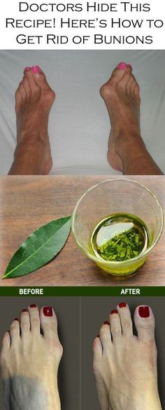 Doctors Hide This Recipe! Here's How to Get Rid of Bunions Completely Naturally!