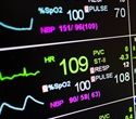 """Heart attack vs Cardiac Arrest 
