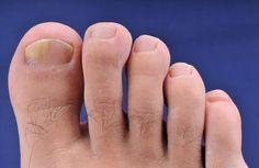 Vous souffrez de mycoses au niveau des ongles des pieds et des mains ? Venez découvrir nos remèdes naturels pour combattre les champignons !