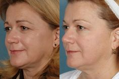 Non-Surgical Laser Face Lift - Perfect Body Laser & Aesthetics® - Long Island, NY Laser Face Lift, Laser Aesthetics, Goji, Nasolabial Folds, Cosmetics Industry, Skin Elasticity, Body Contouring, Jawline, Beauty Tips