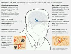 A comparison between Alzheimers disease and Parkinsons diseases.