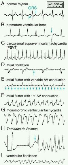 Heart Rhythms Made Easy Ecg Nursing School Tips, Nursing Notes, Nursing Tips, Nursing Schools, Study Nursing, Ob Nursing, Medical School, Medical Students, Nursing Students