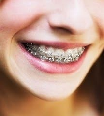 """Don't Hide Your Smile Any Longer! Try"""" Invisalign"""" and """"Invisalign"""" Teen!"""