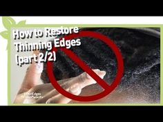 How to restore thinning edges (Part Natural Hair Types, Natural Hair Regimen, Natural Hair Growth, Thinning Hairline, Thinning Edges, Pink Streaks, Hair Care Recipes, Temporary Hair Color, Black Hair Care