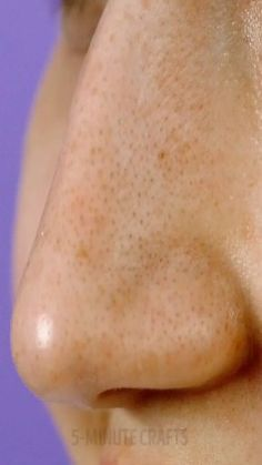 Pin on acne-scar-removal Pin on acne-scar-removal Black Spots On Face, Brown Spots On Hands, Spots On Legs, Dark Spots, How To Get Rid, How To Remove, Get Rid Of Warts, Remove Warts, Skin Moles