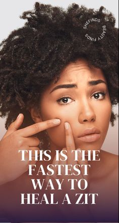 Find out the fastest way to heal a zit at SHEfinds.com. Beauty Makeup Tips, Beauty Skin, Pimples, Cosmetology, Blog Tips, Hair Trends, Skin Care Tips, Celebrity News, Hair And Nails