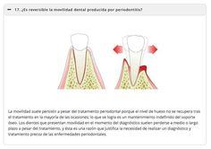 ¿Es reversible la movilidad dental?