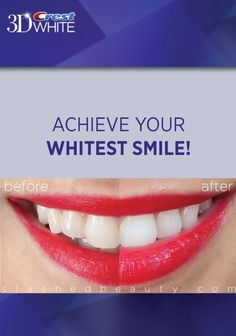 We loved following @Slashed Beauty during the 2 Weeks to Your Whitest Smile Challenge! Look at her amazing results! Try 3D White Luxe Whitestrips Supreme Flexflit today to achieve your whitest smile! #3dwhitesmile #smilestyle Crest 3d White, White Smile, Beautiful Smile, Supreme, Challenge, Amazing, Beauty, Products, Beauty Illustration