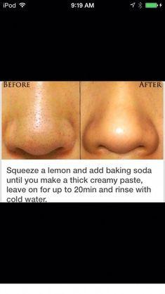 Clear Skin Face, Clear Skin Tips, Face Skin Care, Diy Skin Care, Clear Skin Routine, Beauty Tips For Glowing Skin, Health And Beauty Tips, Beauty Skin, Beauty Care