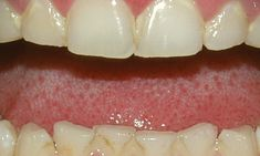 Common Mouth Issues: Teeth Grinding Read an ADA article on the common mouth issues.