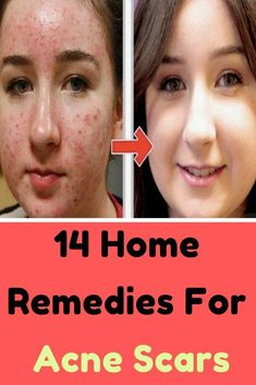 14 Home Remedies For Acne Scars That Actually Work.Home Remedies For Acne Scars Pimples Under The Skin, How To Get Rid Of Pimples, Get Rid Of Blackheads, Home Remedies For Acne, Acne Remedies, Pimples On Buttocks, Pimples On Forehead, Back Acne Treatment, Pimples Overnight