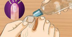 As infecções por fungos são incômodas e, se não tratadas, podem fazer com que o paciente desenvolva problemas mais graves. A proliferação dos fungos resulta de vários fatores, principalmente da umidade e do calor, podendo atingir as unhas dos pés e das mãos. O tratamento deve ser iniciado rapi