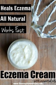 Heal your eczema naturally! Check out this easy, diy, whipped homemade eczema cream!