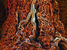 "human digestive system, namely the external wall of small intestine, with blood vessels looking like tangled tree trucks in the jungle: "" The walls of the small intestine are lined with millions of projections called villi, which absorb and transmit nutrients into the bloodstream."" -"