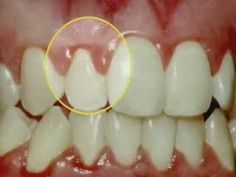 http://www.gumdiseasetreatment.org/gum-disease/