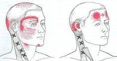 Bóle migrenowe są bardzo powszechne i mogą trwać od kilku godzin do nawet 3 dni. Niestety należą do najmniej poznanych i najgorzej…