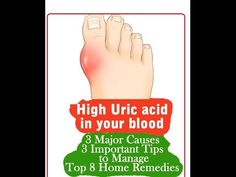 Home Remedies To Control Uric Acid Levels - YouTube