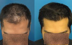Prp treatment for Hair loss in Aanya Clinic http://www.aanyaclinic.com/treatments/prp-hair-loss